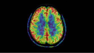 脳の機能画像診断 非造影MR Perfusion(3D-ASL)